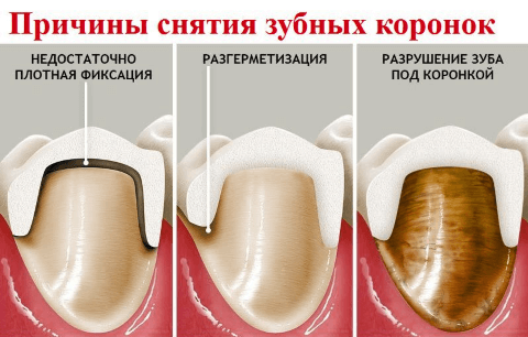 Причины снятия коронки