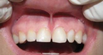 Восстановление десны после удаления зуба