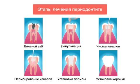 лечение периодонтита этапы