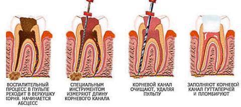 лечение пульпита в Москве