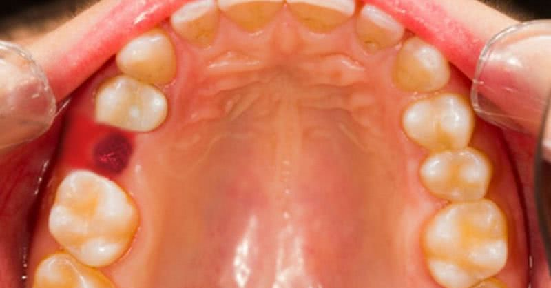 Как выглядит вырванный коренной зуб