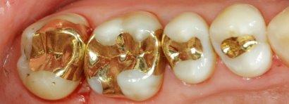 plombirovanie-zubov-zoloto.jpg