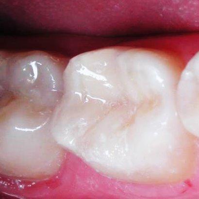 plombirovanie-zubov-plastmassa.jpg