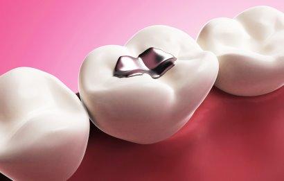 plombirovanie-zubov-amalgama.jpg
