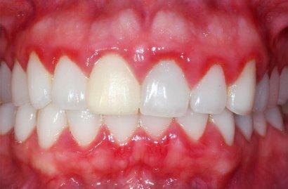 gingivit-u-detey2.jpg
