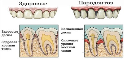 parodontoz2.jpg