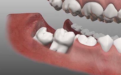 bolit-zub-mudrosti-3.jpg