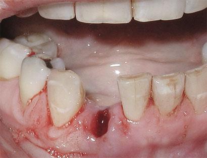 Как должна выглядеть лунка после удаления зуба