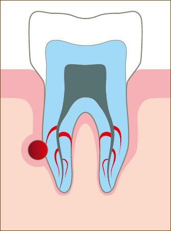 лечение корневых каналов зуба, гутапперча